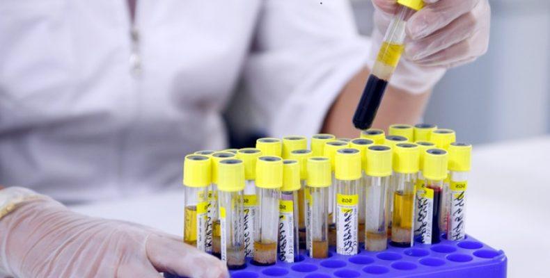 Киевляне смогут пройти бесплатную проверку на гепатит и ВИЧ