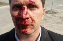 Дубль два: в Києві по-звірячому побили лікаря, який розповів про корупцію в медицині